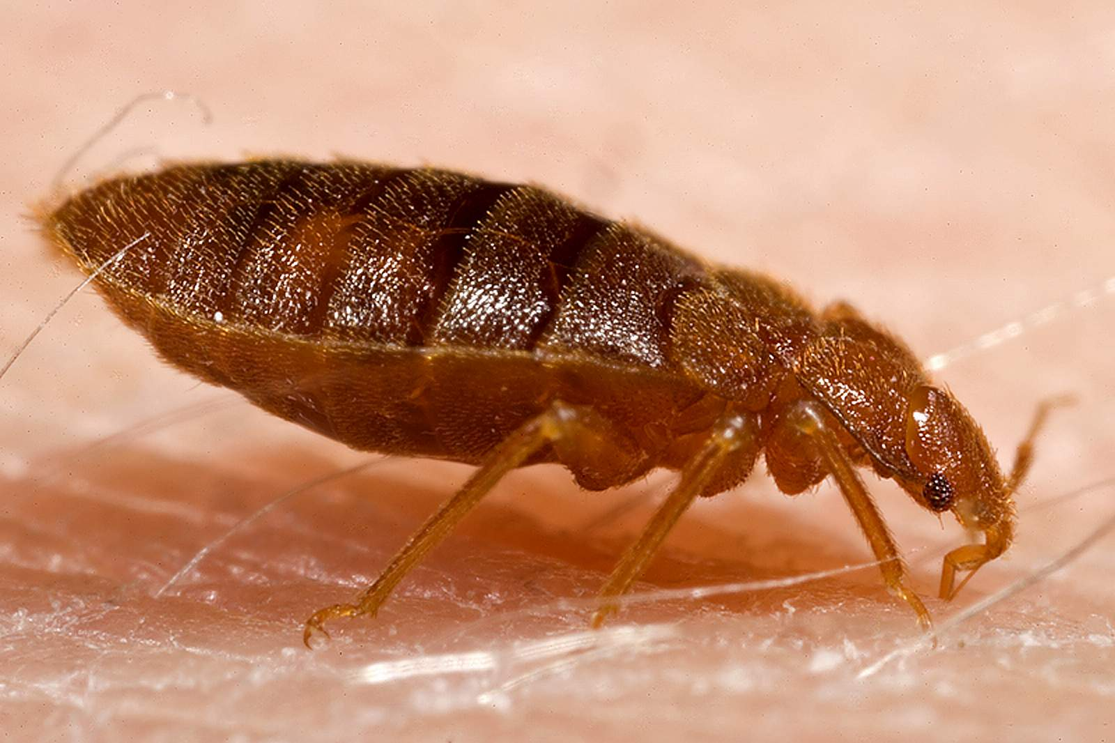bedbugs bite